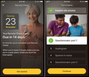 Remote checking is now available for cochlear implants