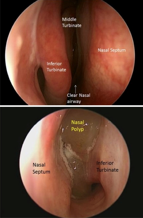 photo of nasal airway with polyp