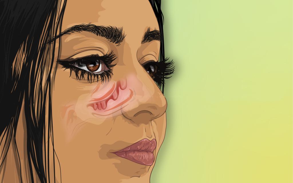 cartoon of nasal polyps